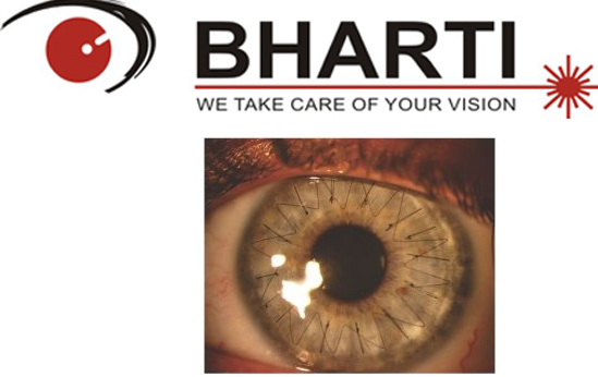 Bharti Eye Foundation, 011-25889900 - logo