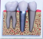 Bhagwati Dental Clinic & Implant Center ,Best Dental Service in haridwar - logo